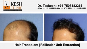 Choose Wisely A Hair Transplant Clinic