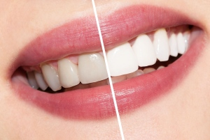 Invisalign Invisible Braces- What Are They?